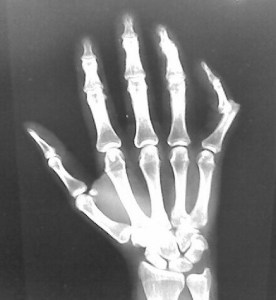 X-ray of dislocated finger bone