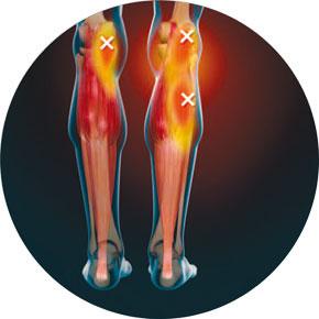 wadenmuskelzerrung ruptur thrombose