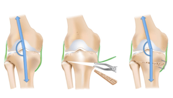 Osteotomie
