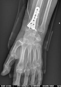 Fracture Poignet