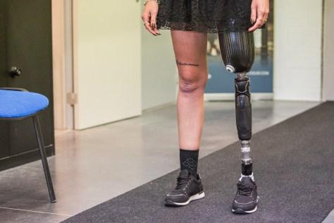 Orthopédie Protechnik-prothèse fémorale