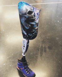 Prothèse fémorale personnalisée