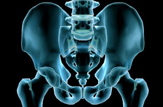 Doctor creates new pelvis using a 3D printer: Bone cancer sufferer is walking again thanks to breakthrough treatment