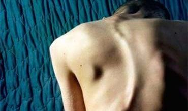Photo of Link discovered between severe scoliosis and rare mutations