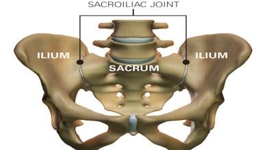 Photo of Three Curious Symptoms of Ankylosing Spondylitis