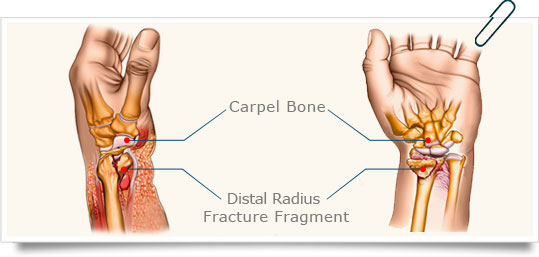 High rate of complications following volar plating of distal radius ...