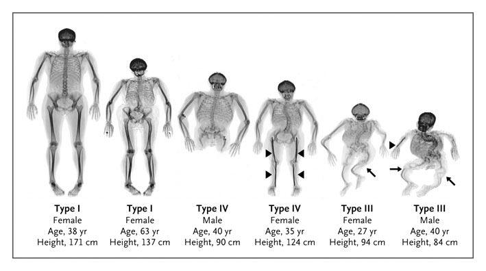 New test for Osteogenesis Imperfecta or brittle bone disease