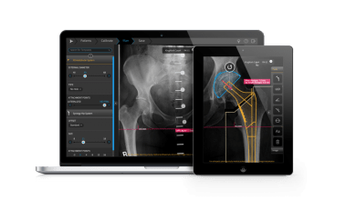 Photo of FDA clears iPad app for pre-operative surgical planning