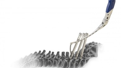 Photo of Medtronic (MDT) Launches Minimally Invasive Spinal System