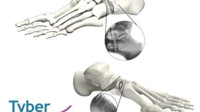 Photo of Tyber Medical Announces The Full Market Release For The TyWedge™ Evans And Cotton Osteotomy Wedge Systems