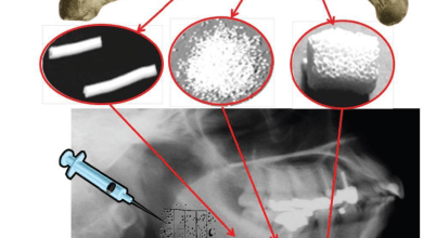 Photo of New Resorbable Bioceramic Materials for Bone Fractures Might Soon Enter the Market