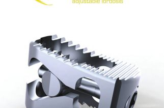 SpineSource Launches Expandable Lumbar Interbody Cage in U.S.