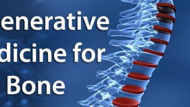 Photo of Bone Biologics Completes $5.75 Million Round Of Financing