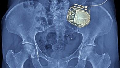 Photo of Nevro touts 2-year data on Senza spinal cord stim