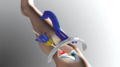 Photo of CT  Surgeon gives patients pain relief with an innovative procedure to treat stress fractures