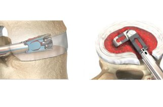 Dr. Kern Singh to Lead a Clinical Study on the FLXfit™ 3D Expandable Cage at Rush University Medical Center
