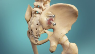 Photo of Zyga Releases 12-month Fusion and Clinical Results of Sacroiliac Joint Fusion with Decortication