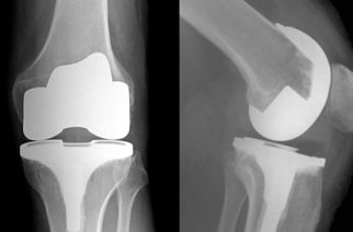 TRANEXAMIC ACID IN JOINT ARTHROPLASTY; NOVEL OSTEOPOROSIS THERAPY; PRICE SHOPPING PATIENTS