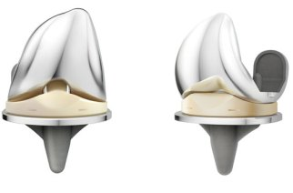New UK joint registry data confirms positive early results for the DePuy Synthes ATTUNE® Knee System