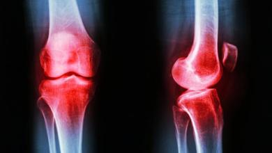 Photo of Reconstructive Knee Replacement Market to Grow 5.5% Annually Through 2020