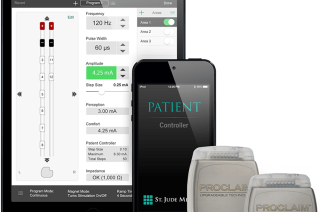 St. Jude Medical Receives CE Mark Approval for Full Body MR Conditional Labeling for the Proclaim Elite Spinal Cord Stimulation System