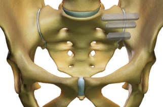 SI-BONE's iFuse Implant System® Requires Revision Surgery 5 Times Less Compared to SI Joint Fixation with Screws According to New Peer-Reviewed Clinical Publication