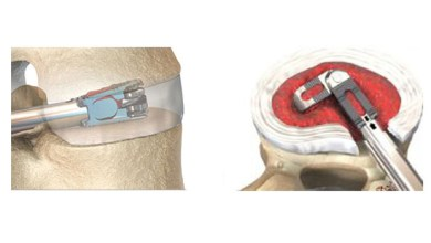 Photo of EOI Announces that Dr. Henry Ruiz is the First to Implant the FLXfit™ 3D Expandable Cage in Alabama