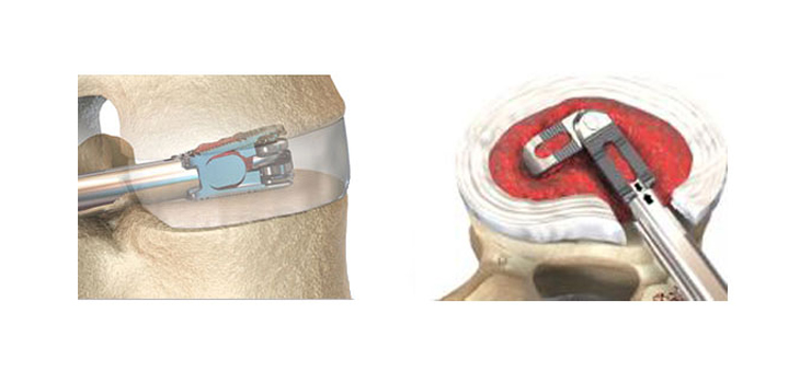 EOI Announces that Dr. Henry Ruiz is the First to Implant the FLXfit™ 3D Expandable Cage in Alabama