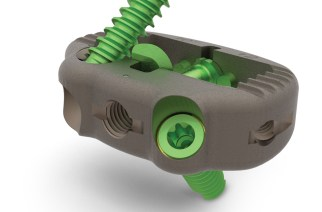 SeaSpine® Announces Full Commercial Launch of Vu a∙POD™ Prime NanoMetalene® System