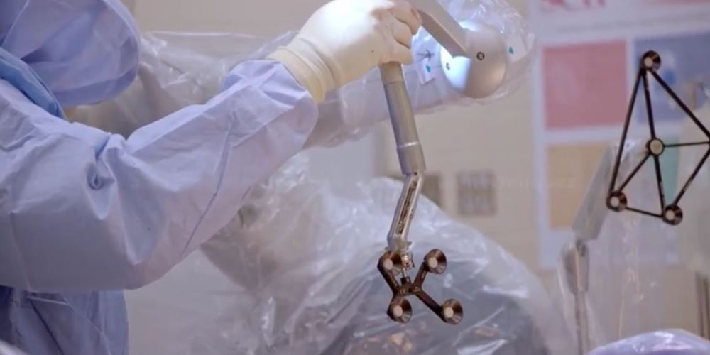 Global Hip and Knee Orthopedic Surgical Robots Industry Research Report 2016 to 2022