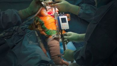 Photo of OrthAlign, Inc. Announces Milestone Achievement 60,000th Joint Arthroplasty Case