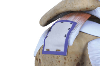 Rotation Medical Bioinductive Implant Induces New Tissue Formation in Patients with Large and Massive Rotator Cuff Tears