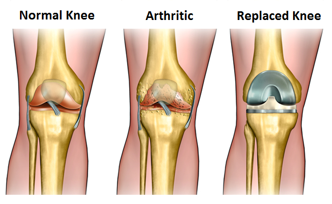 Researchers Find Knee Replacement Surgery May Have Minimal Effect on Quality of Life and Unattractive Economic Outcomes