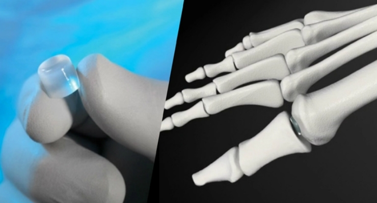 Cartiva, Inc., Announces Completion of Patient Enrollment and Treatment in Study of Cartiva® Synthetic Cartilage Implant