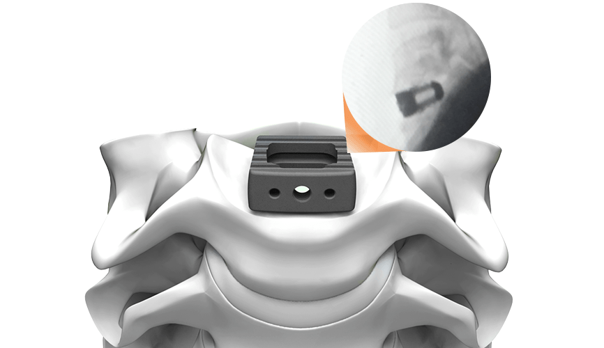 Life Spine Announces FDA Clearance of PLATEAU®-C Ti Cervical Spacer System