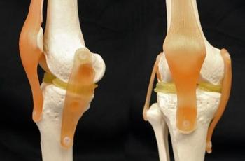 3-D Printable Implants May Ease Damaged Knees