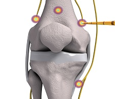 Photo of FDA Clears Halyard Health's COOLIEF* for the Management of Osteoarthritis Knee Pain