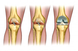 Global Knee Replacement Devices Market to Grow at a CAGR of 3.25% by 2021: Growing Demand for Cementless Knee Replacement – Research and Markets