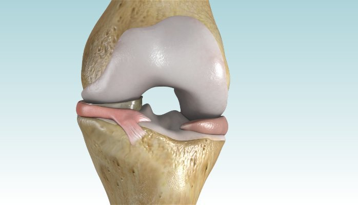 OrthoMemphis Performs First Meniscus Replacement in Tennessee with