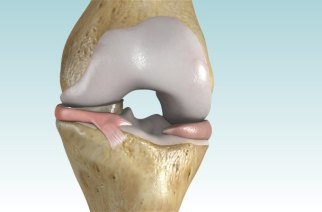 OrthoMemphis Performs First Meniscus Replacement in Tennessee with NUsurface® Implant