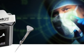 Exactech Announces Successful First Surgeries with New Equinoxe® Preserve Stem and ExactechGPS® Shoulder Application
