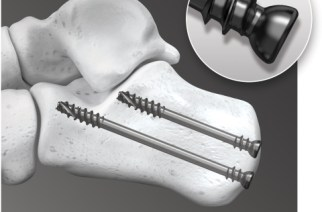 In2Bones USA Announces FDA Clearance on Two Key Implant Systems