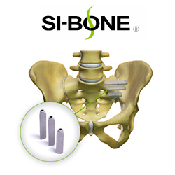 SI-BONE, Inc. Announces Publication of a Level I Study Demonstrating Strong Clinical Prediction for the Diagnosis of SI Joint Dysfunction