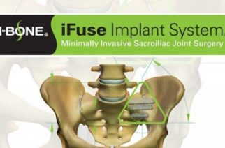 SI-BONE, Inc. Announces Highmark, Inc., 4th Largest BCBS Plan & 10th Largest Commerical Payor, Establishes Coverage Policy for MIS SI Joint Fusion IFuse Implant System
