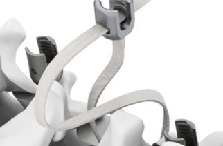 Band-LOK Announces Allowance for Two New U.S Patents for the Tether Clamp and Implantation System