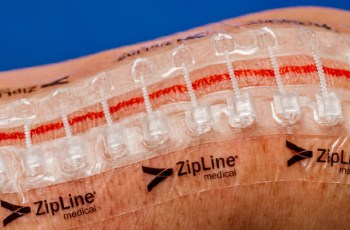 Zip Surgical Skin Closure Reduces Post-Discharge Costs, Clinic Calls and Antibiotics in First Economic Study of Device