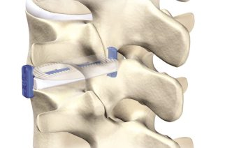 VGI Medical Enters Lateral Spine Market With 1st Of Its Kind Technology