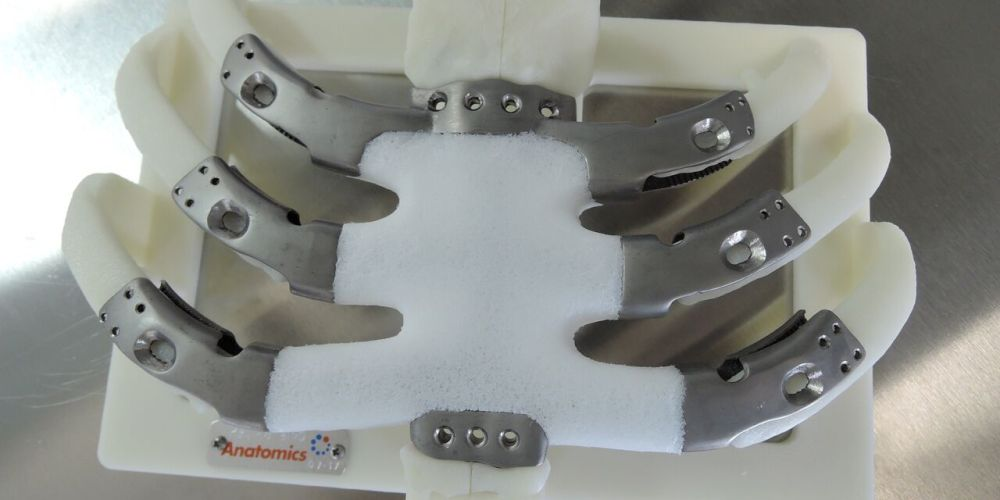 American Surgical Team Successfully Completes First 3D Printed Titanium and Polymer Sternum Implant Procedure in the United States