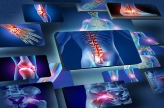 Extremity Reconstruction Market is evolving at fast pace