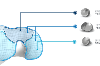 Episurf Medical reaches milestone of 300 implants
